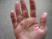 22 Roxanna's windsurfing blistered hand